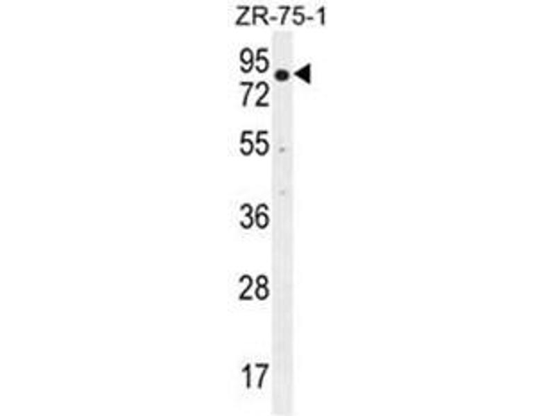 Western Blotting (WB) image for anti-beta-Transducin Repeat Containing (BTRC) (AA 24-60), (N-Term) antibody (ABIN952275)