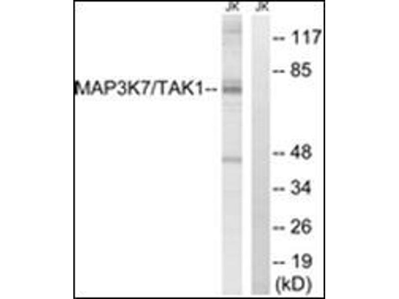 Western Blotting (WB) image for anti-MAP3K7 antibody (Mitogen-Activated Protein Kinase Kinase Kinase 7) (Internal Region) (ABIN784213)
