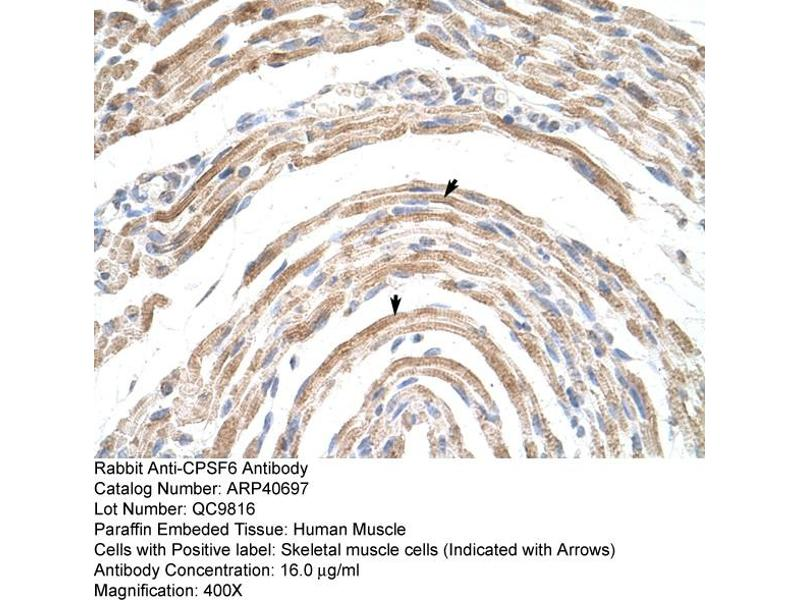 Immunohistochemistry (IHC) image for anti-CPSF6 antibody (Cleavage and Polyadenylation Specific Factor 6, 68kDa) (Middle Region) (ABIN184019)