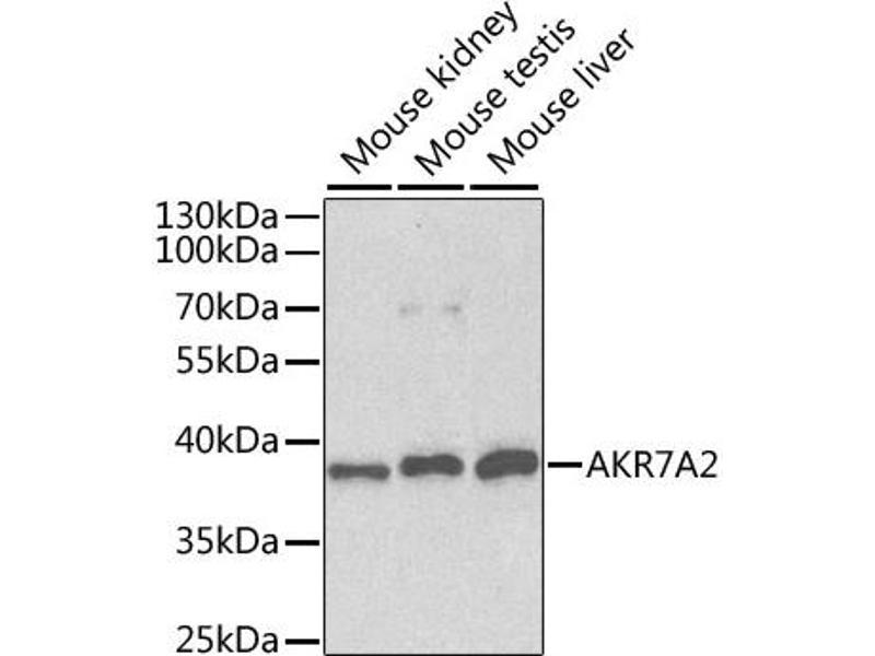 Image no. 2 for anti-Aflatoxin Beta1 Aldehyde Reductase (AKR7A2) antibody (ABIN6567400)