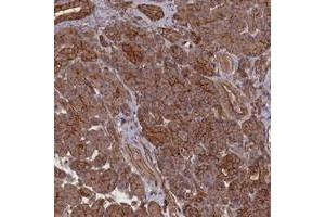 Image no. 2 for anti-Zinc Finger Protein 646 (ZNF646) antibody (ABIN5591415)
