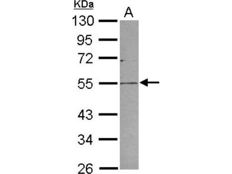 Western Blotting (WB) image for anti-Plasmalemma Vesicle Associated Protein (PLVAP) (Center) antibody (ABIN4346313)