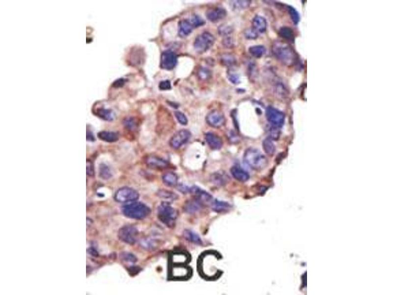 Immunohistochemistry (IHC) image for anti-Ubiquitin-Conjugating Enzyme E2L 3 (UBE2L3) (AA 123-153), (C-Term) antibody (ABIN1882145)