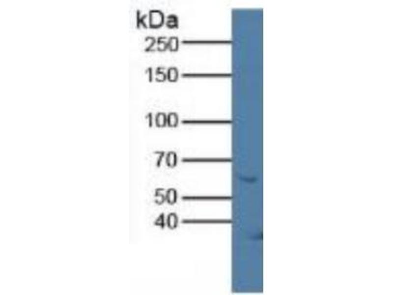 Klotho (KL) ELISA Kit (3)