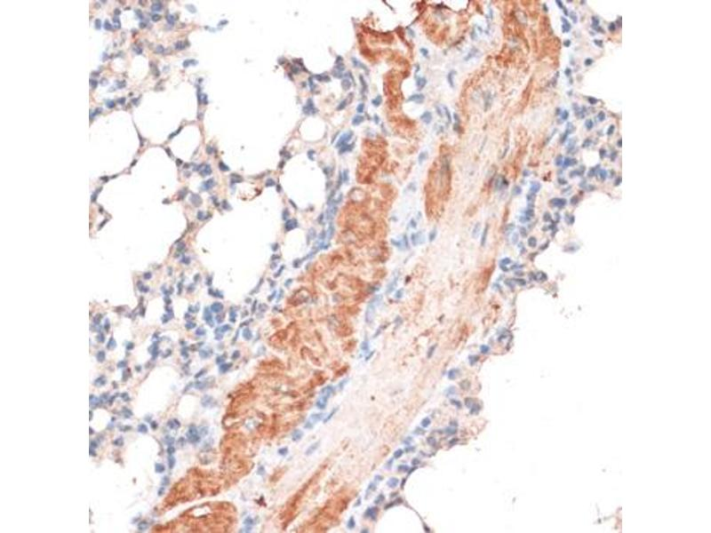 Image no. 4 for anti-ATP-Binding Cassette, Sub-Family B (MDR/TAP), Member 7 (ABCB7) antibody (ABIN6568439)