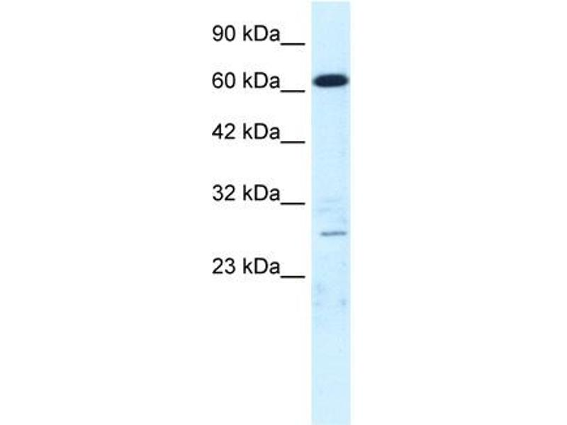 Western Blotting (WB) image for anti-MED17 抗体 (Mediator Complex Subunit 17) (N-Term) (ABIN2778320)