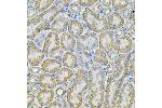 Immunohistochemistry (IHC) image for anti-Adaptor-Related Protein Complex 2, alpha 1 Subunit (AP2A1) antibody (ABIN5965229)
