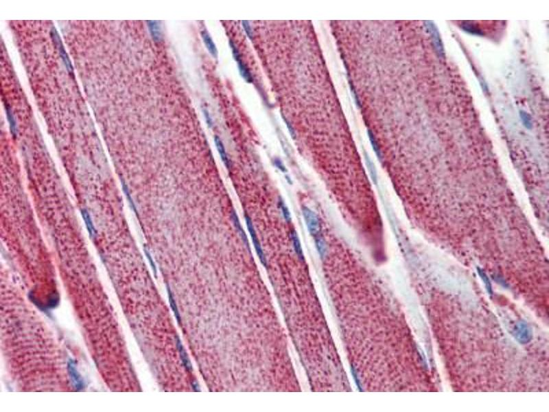 Image no. 1 for anti-Superoxide Dismutase 2, Mitochondrial (SOD2) antibody (ABIN462380)