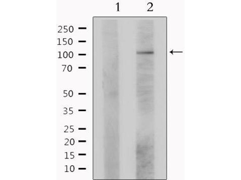 Western Blotting (WB) image for anti-Ligase IV, DNA, ATP-Dependent (LIG4) antibody (ABIN6262967)