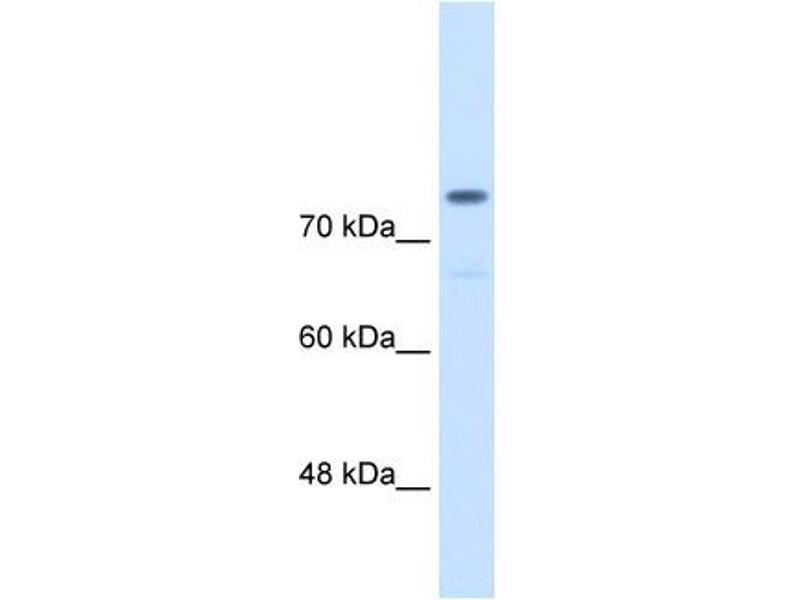 Western Blotting (WB) image for anti-alpha Actinin 4 antibody (Actinin, alpha 4) (C-Term) (ABIN310299)