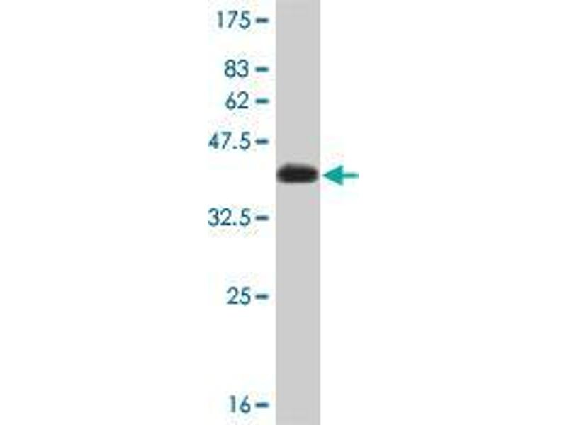 Western Blotting (WB) image for anti-conserved Helix-Loop-Helix Ubiquitous Kinase (CHUK) (AA 646-745) antibody (ABIN393762)