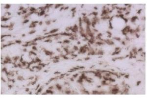 Immunohistochemistry (Frozen Sections) (IHC (fro)) image for anti-CD8a Molecule (CD8A) antibody (ABIN4295972)