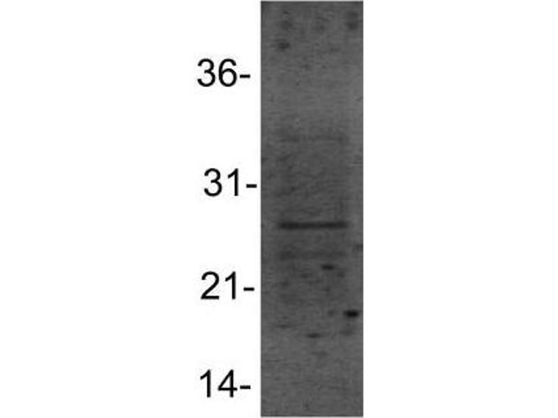 Western Blotting (WB) image for anti-Heat Shock 27kDa Protein 1 (HSPB1) (AA 80-150), (Internal Region) antibody (ABIN4319980)