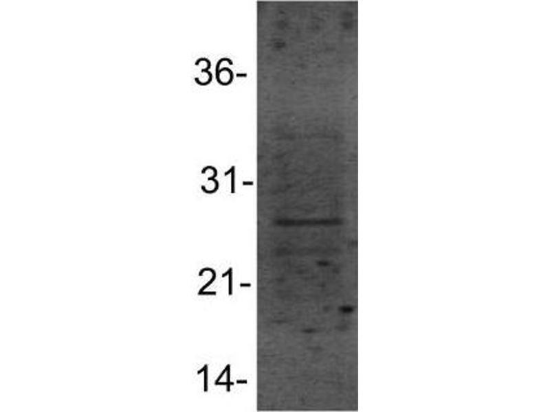 Western Blotting (WB) image for anti-Heat Shock 27kDa Protein 1 (HSPB1) (AA 80-150), (Internal Region) antibody (ABIN4319980)