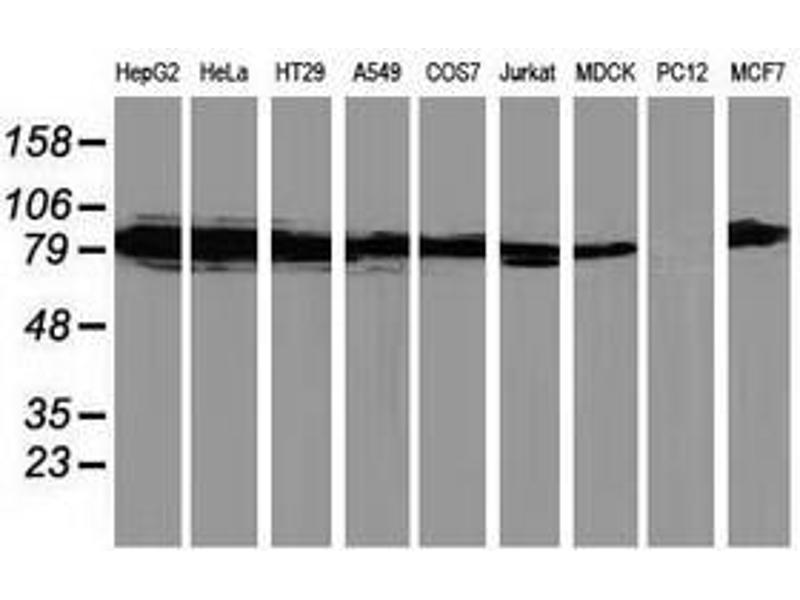 image for anti-Protein Kinase C, epsilon (PRKCE) antibody (ABIN1500229)