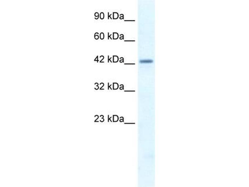 Western Blotting (WB) image for anti-LW-1 (HSFX1) (Middle Region) antibody (ABIN183244)