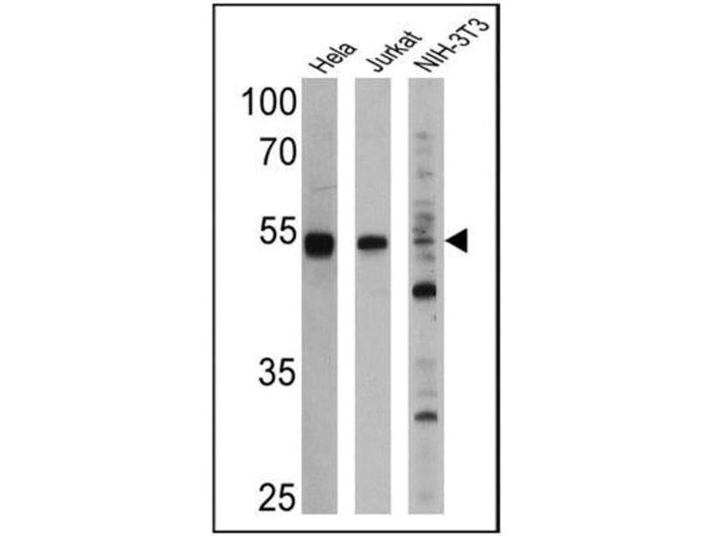 Image no. 2 for anti-Peroxisome Proliferator-Activated Receptor alpha (PPARA) antibody (ABIN152696)