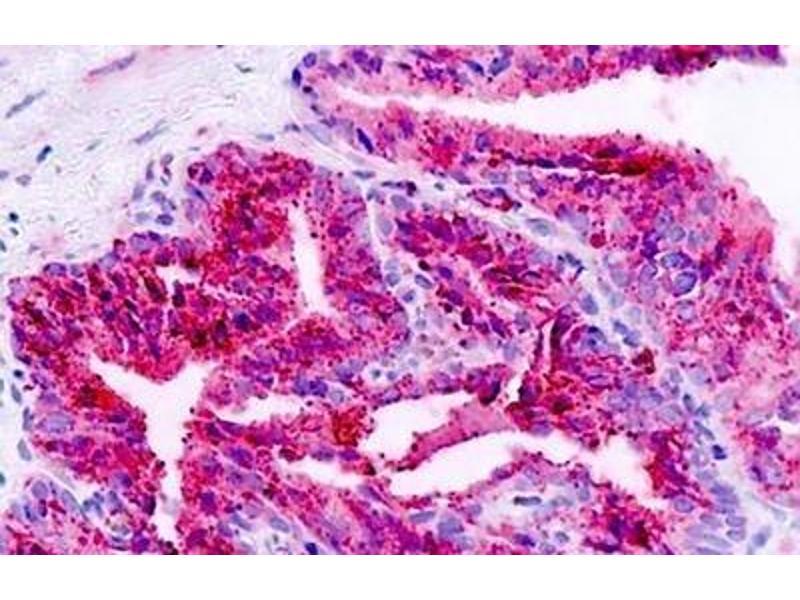Immunohistochemistry (IHC) image for anti-BAI1 antibody (Brain-Specific Angiogenesis Inhibitor 1) (N-Term) (ABIN213519)