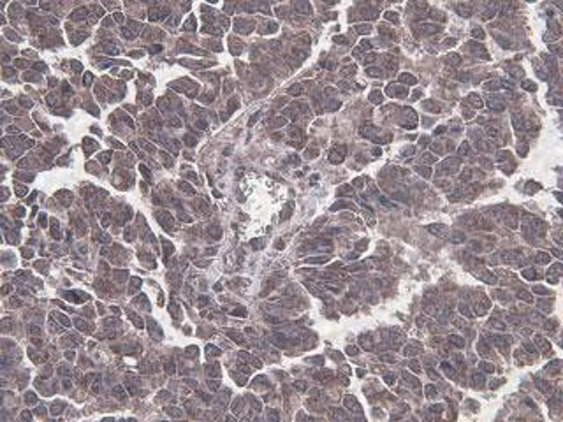 Immunohistochemistry (IHC) image for anti-Beclin 1 antibody (Beclin 1, Autophagy Related) (full length) (ABIN387797)
