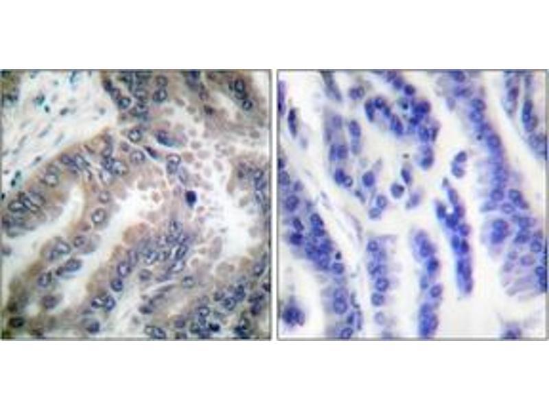 Immunohistochemistry (IHC) image for anti-Caspase 8, Apoptosis-Related Cysteine Peptidase (CASP8) (AA 313-362) antibody (ABIN1532233)