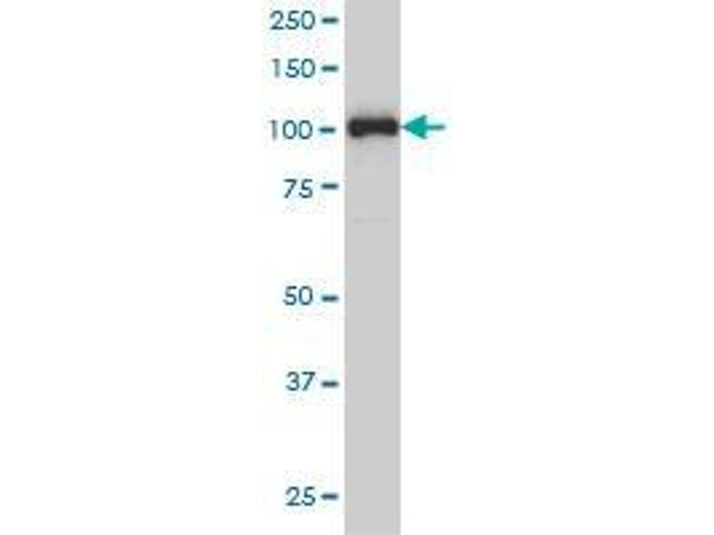 Immunohistochemistry (IHC) image for anti-Progesterone Receptor (PGR) (AA 1-111) antibody (ABIN393969)
