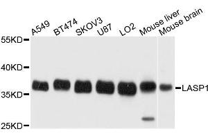 Image no. 2 for anti-LIM and SH3 Protein 1 (LASP1) antibody (ABIN1680664)