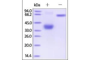 Image no. 1 for Tumor Necrosis Factor Receptor Superfamily, Member 17 (TNFRSF17) (AA 1-54) (Active) protein (Fc Tag) (ABIN2180644)