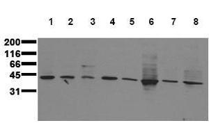 Western Blotting (WB) image for anti-MAP2K3 antibody (Mitogen-Activated Protein Kinase Kinase 3) (ABIN126840)