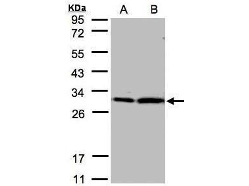 Western Blotting (WB) image for anti-tyrosine 3-Monooxygenase/tryptophan 5-Monooxygenase Activation Protein, zeta Polypeptide (YWHAZ) (Center) antibody (ABIN2854923)