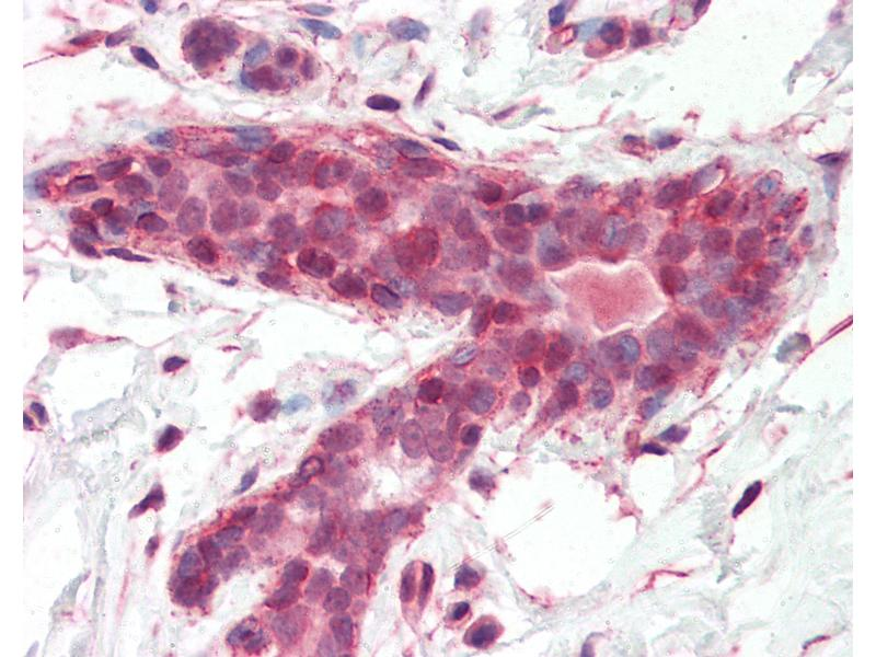 Immunohistochemistry (IHC) image for anti-BRCA1 Associated Protein (BRAP) (AA 67-79) antibody (ABIN462090)