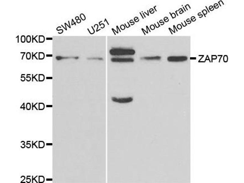 Western Blotting (WB) image for anti-ZAP70 antibody (zeta-Chain (TCR) Associated Protein Kinase 70kDa) (ABIN1875382)