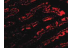 Image no. 2 for anti-Golgi-Associated PDZ and Coiled-Coil Motif Containing (GOPC) (C-Term) antibody (ABIN6657012)