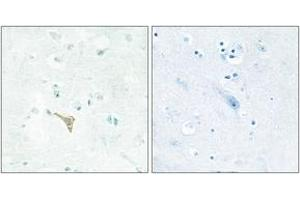 Image no. 1 for anti-Reversion-Inducing-Cysteine-Rich Protein with Kazal Motifs (RECK) (AA 21-70) antibody (ABIN1533572)