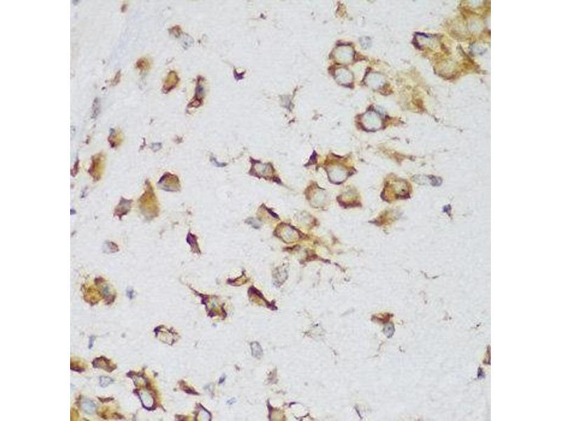 Immunohistochemistry (IHC) image for anti-Metadherin (MTDH) antibody (ABIN2737196)