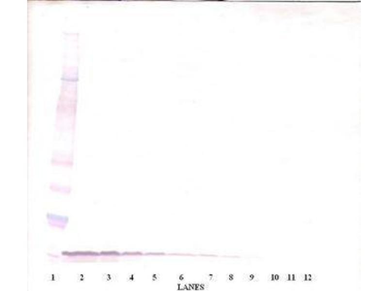 image for anti-EGF antibody (Epidermal Growth Factor) (ABIN465058)