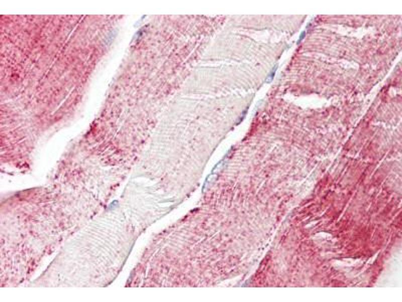 image for anti-Xylosyltransferase II (XYLT2) (AA 722-771) antibody (ABIN1492885)
