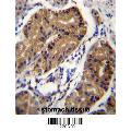 anti-DCC antibody (Deleted in Colorectal Carcinoma) (AA 643-670)