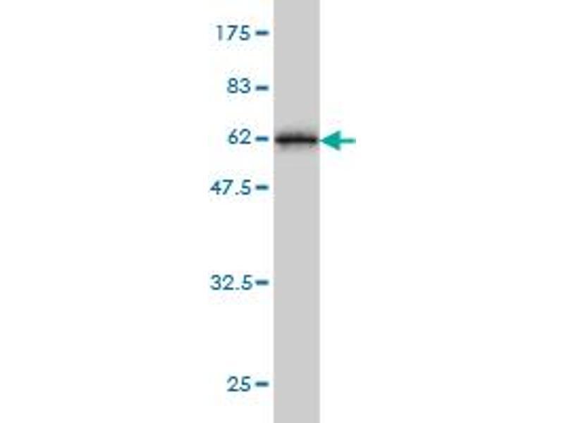 Image no. 3 for anti-Testis-Specific Serine Kinase 3 (TSSK3) (AA 1-268) antibody (ABIN566478)
