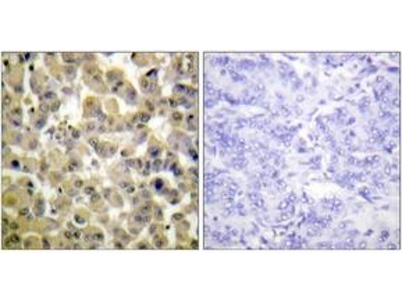 Immunohistochemistry (IHC) image for anti-RPS6KA5 Antikörper (Ribosomal Protein S6 Kinase, 90kDa, Polypeptide 5) (pSer360) (ABIN1531444)