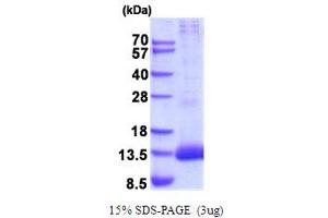Image no. 1 for Peptidase Inhibitor 3, Skin-Derived (PI3) (AA 23-117) protein (His tag) (ABIN5854272)