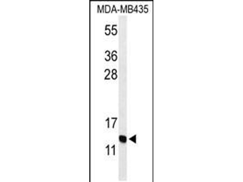 Image no. 1 for anti-Gonadotropin-Releasing Hormone 2 (GnRH2) (AA 26-53) antibody (ABIN5536546)