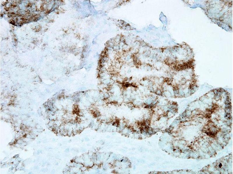 Immunohistochemistry (IHC) image for anti-Heat Shock 60kDa Protein 1 (Chaperonin) (HSPD1) antibody (Alkaline Phosphatase (AP)) (ABIN2481436)