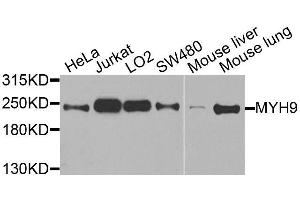 Western Blotting (WB) image for anti-Non-Muscle Myosin Heavy Polypeptide 9 (MYH9) antibody (ABIN5663599)