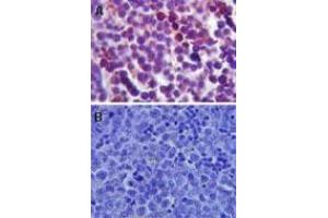 Immunohistochemistry (Paraffin-embedded Sections) (IHC (p)) image for anti-Toll-Like Receptor 4 (TLR4) (AA 400-450), (Internal Region) antibody (ABIN252535)
