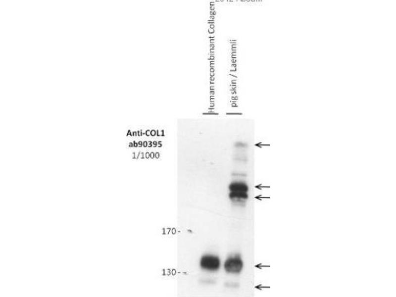 Western Blotting (WB) image for anti-Collagen, Type I (COL1) antibody (ABIN153357)