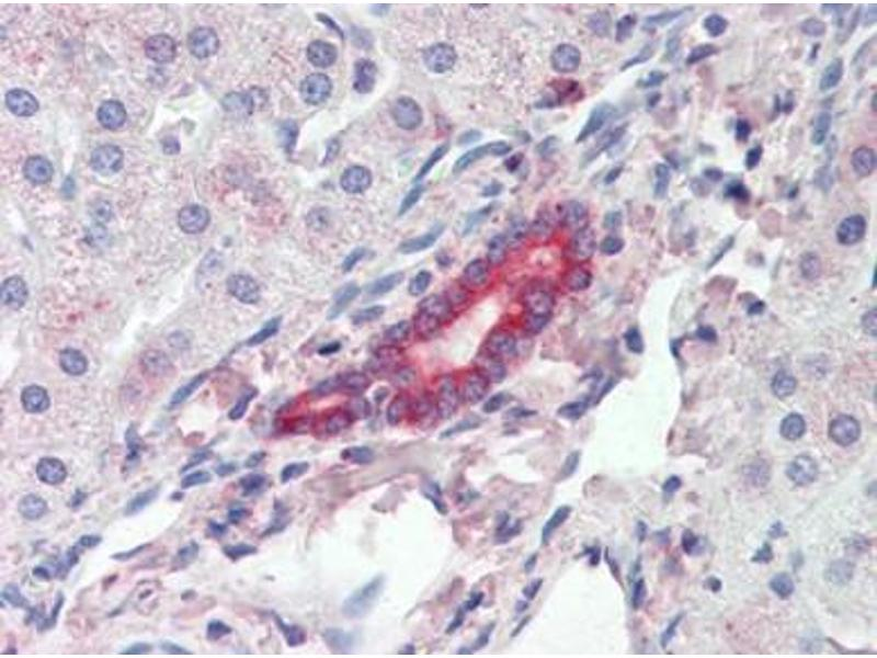 Immunohistochemistry (Paraffin-embedded Sections) (IHC (p)) image for anti-ROR1 antibody (Receptor Tyrosine Kinase-Like Orphan Receptor 1) (ABIN615289)