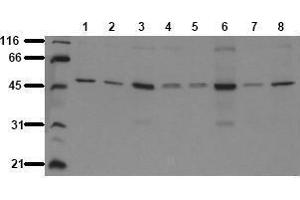 Western Blotting (WB) image for anti-GSK3 alpha antibody (Glycogen Synthase Kinase 3 alpha) (ABIN126803)