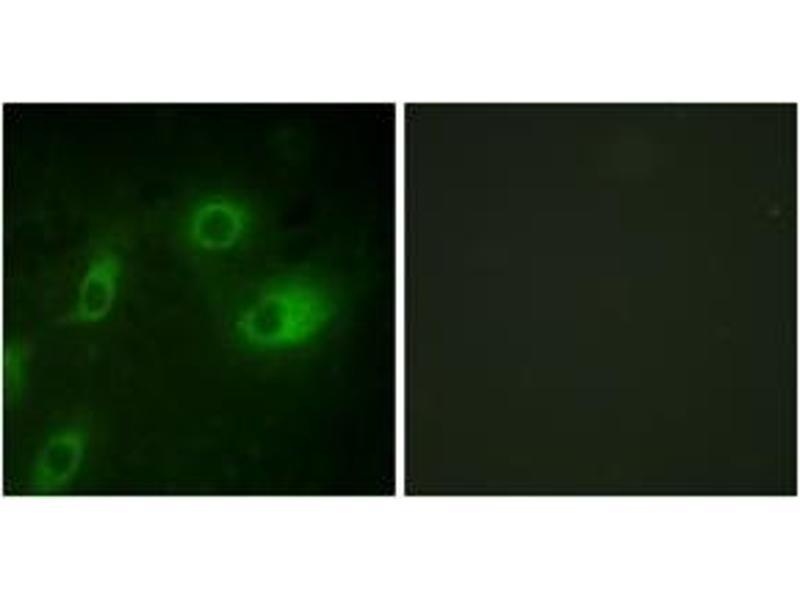 Immunofluorescence (IF) image for anti-Keratin 18 (KRT18) (AA 21-70), (pSer52) antibody (ABIN1531567)