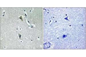 Immunohistochemistry (IHC) image for anti-PKC theta antibody (Protein Kinase C, theta) (pThr538) (ABIN1531465)