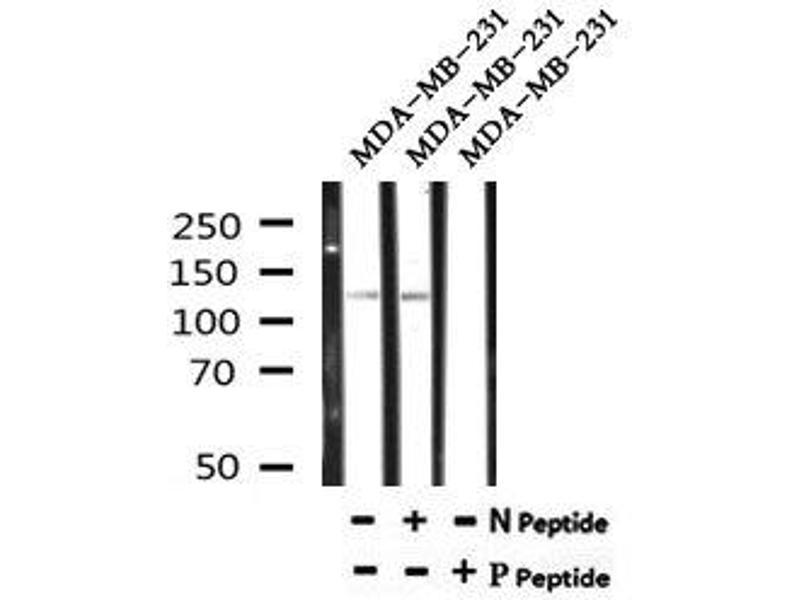 Image no. 3 for anti-Receptor tyrosine-protein kinase erbB-2 (ErbB2/Her2) (pTyr735) antibody (ABIN6269777)